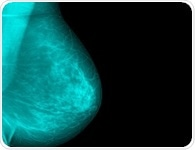 Microwave Imaging for Breast Cancer: Procedure
