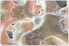 Osteoporosis is not only a women's disease