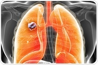Looking outside the tumor and thinking outside the box to diagnose lung cancer