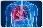 Graphene could hold key to unlock next generation of early lung cancer diagnosis