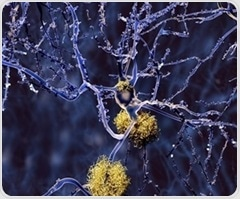 Researchers explore how the brain changes over the course of Alzheimer's disease