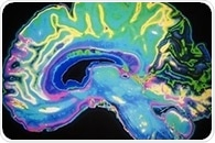Researchers identify brain region that helps execute cooperative tasks