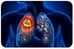 Deep-learning model better predicts survival outcomes for lung cancer
