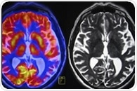 New type of dementia is '100 times more common' than ALS