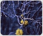 Researchers map molecular structure and dynamics of one of Alzheimer's stickier culprits