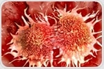 Study reveals how aggressive prostate cancer metastasizes by evading the immune system