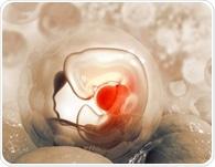 Estrogen exposure during fetal life increases autism risk