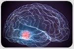 Antioxidant precursor molecule could improve dopamine levels in Parkinson's patients