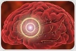 NIH trial aims to improve drug discovery for ischemic stroke