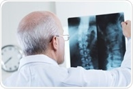 CT scan of the lumbar spine prior to surgery reveals undiagnosed osteoporosis in many patients