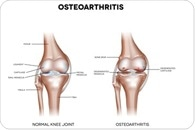 Bursitis and Osteoarthritis Similarities and Differences