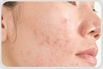 Dental health, diet may have an impact on psoriasis development and severity