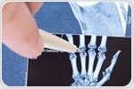 Juvenile immune arthritis – new treatments wanted