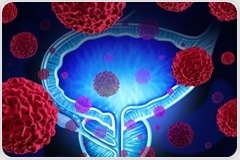 Targeted screening effective in reducing prostate cancer deaths
