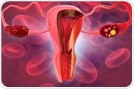 Self-sampling could increase detection of cervical pre-cancer