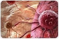 Researchers demonstrate the effectiveness of new bladder cancer treatment