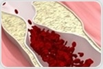 New nanoparticle innovation detects vascular calcification in atherosclerosis