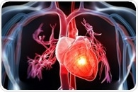 Women and men more likely to have another major cardiovascular event after stroke