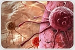 New summary report highlights advances and challenges in small cell lung cancer research