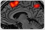Nature of social cognitive deficits in people with progressive multiple sclerosis