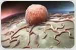 New viable therapeutic strategy found for ER+ breast cancer