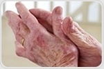 New light-activated drug delivery method helps confine arthritis treatments to the joints