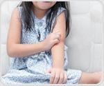Nasal smear as screening test for allergic rhinitis