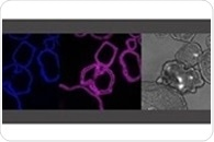 Organoids reveal inflammatory processes that play a role in infectious diseases