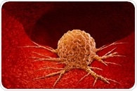 Helping to unravel the genetic diversity of cancer tumors