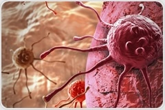 A new perspective on lung cancer