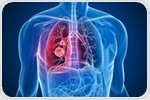 Recent Advancements in Lung Cancer Treatment