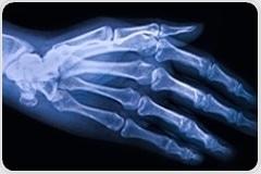 Functional bone imaging technique reveals the progression of knee osteoarthritis