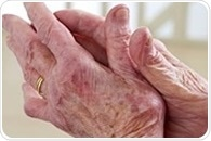 uEXPLORER TB-PET/CT scanner captures complete picture of systemic inflammatory arthritis