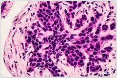 Enhancing Breast Cancer Therapy through Killing 'Sleeper Cells'