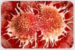 Novel biomarkers linked to improved outcomes with immunotherapy in metastatic breast cancer