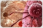 Treatment with a cannabinoid prevented the development of colon cancers in mice