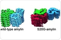 Scientists identify the structure of protein fiber associated with early-onset type 2 diabetes