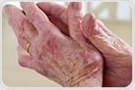 Genetic data reveals link between obesity-related genes and rheumatoid arthritis