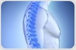 Novel genetic measure could improve screening for osteoporosis