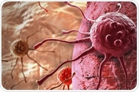 Antibody improves progression-free survival in patients with advanced prostate cancer
