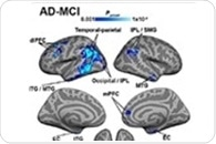Impaired blood flow to brain regions linked with tau buildup in Alzheimer's disease