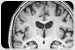 Anxiety may help to progress Alzheimer's disease