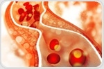 Researchers find link between BCO1 enzyme and bad cholesterol level