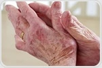 Study shows that risk of autoimmune disease lupus is higher in females