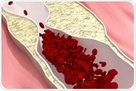 Atherosclerosis can speed up the development of clonal hematopoiesis