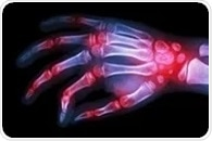 GBP5 protein may play a key role in suppressing inflammation in rheumatoid arthritis