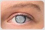 New groundbreaking implant designed to correct presbyopia