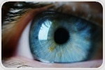 Scientists identify genetic mutation associated with exfoliation syndrome known to cause glaucoma
