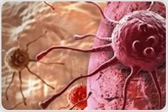 Algorithm for skin cancer diagnosis performs on par with dermatologists