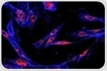 Research shows how circadian control of glucose production is disrupted during lung cancer progression
